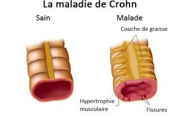 Crohn's disease - Medical Tourism in France